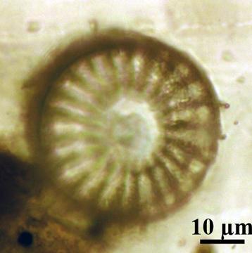 Plancton Diatomée