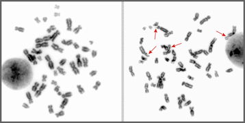Photo_Chromosome