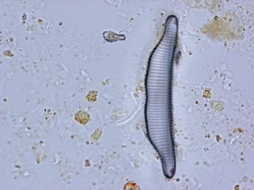 diatomée eunotia