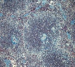fibrose2