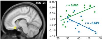 cerveau et graphe
