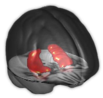 Hippocampe Inserm