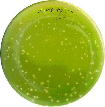 « Gazon » de l'algue Chlorelle sur une boite de Pétri, montrant  des petites « plaques » circulaires (petits cercles décolorés) révélatrice de la présence d'un virus.