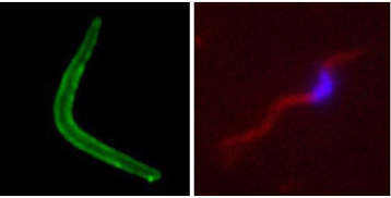 Plasmodium tRip ARNt