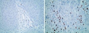 Tissus Cancers Vessie