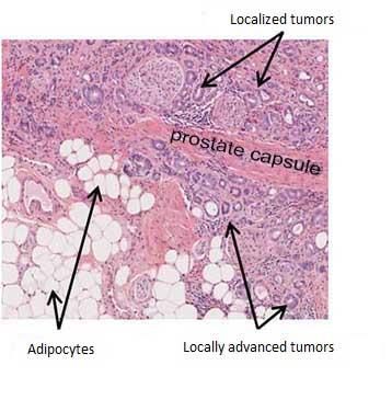 figure anglais cancer de la prostate