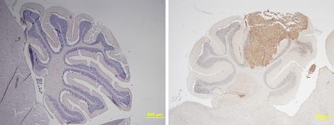cerebellum_medulloblastoma