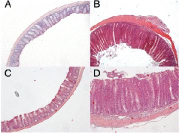 linfocitos