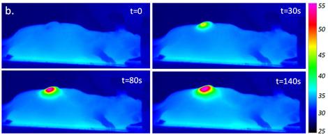 IR images nanohyperthermia