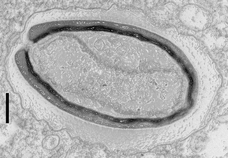 Pandoravirus quercus