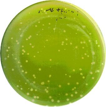 A Chlorella algae �lawn� on a Petri dish