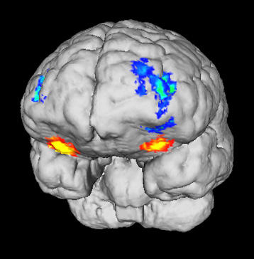 dissociation between primary and secondary rewards in the orbitofrontal cortex