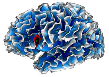 Autism_brain_map